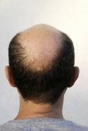 Perte de cheveux - Alopécie - Calvitie