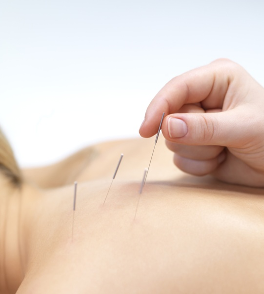 acupuncture médecines douces médecines alternatives