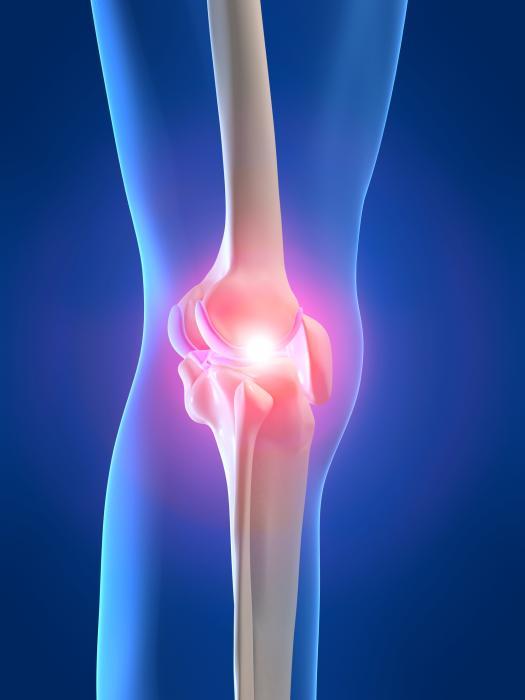 Arthrite - Arthrose - Polyarthrite rhumatoïde